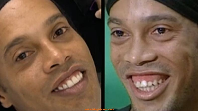 sonrisa ronaldinho