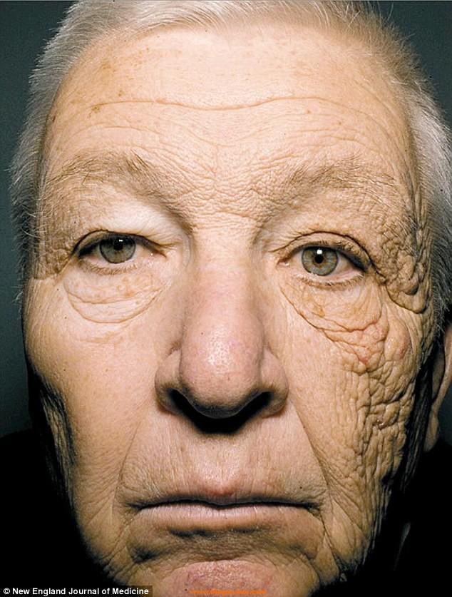 cara-efectos-sol-piel