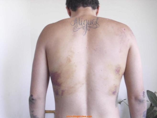 Imagen de las marcas en el cuerpo del español, Juan Manuel Carrasco.