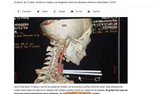 Niño sobrevive tras clavarse los palillos chinos en la garganta 2
