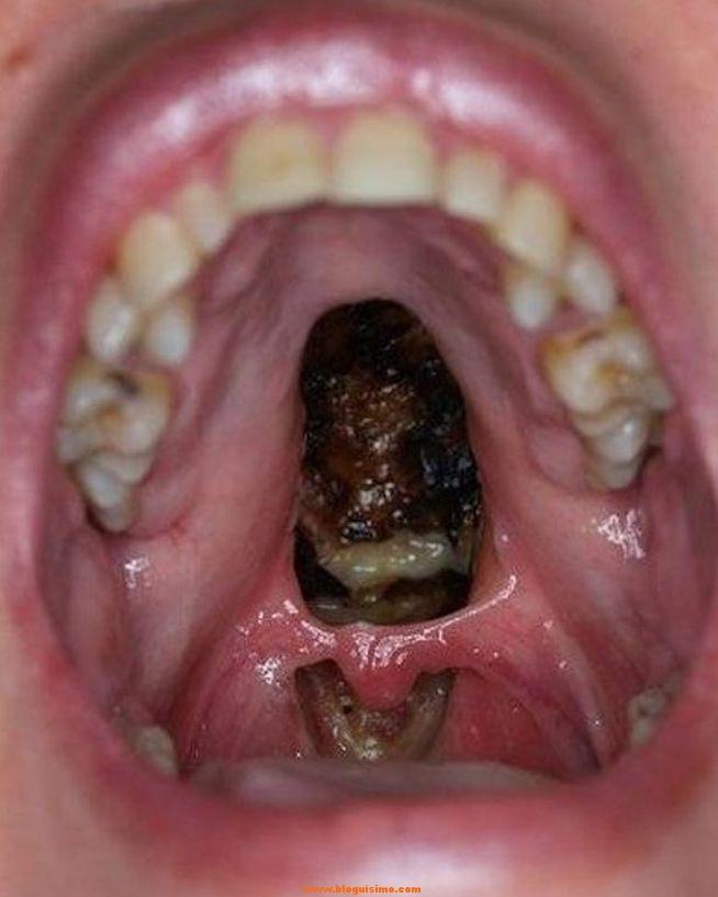 Impactante foto muestra las secuelas de la cocaína